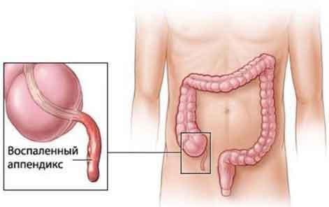 appendix2