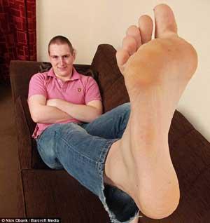 нога опухла