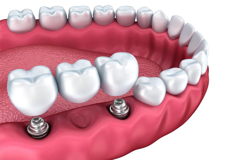 Сколько стоит имплант жевательных зубов?